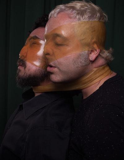 Escuin y A. Kassab (Botox)